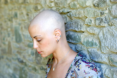 Womens Alopecia Guide