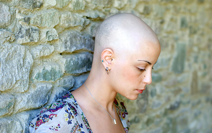 Alopecia Totalis Women